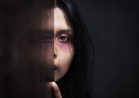 کمک متفاوت یک کلینیک زیبایی به زنان قربانی خشونت خانوادگی