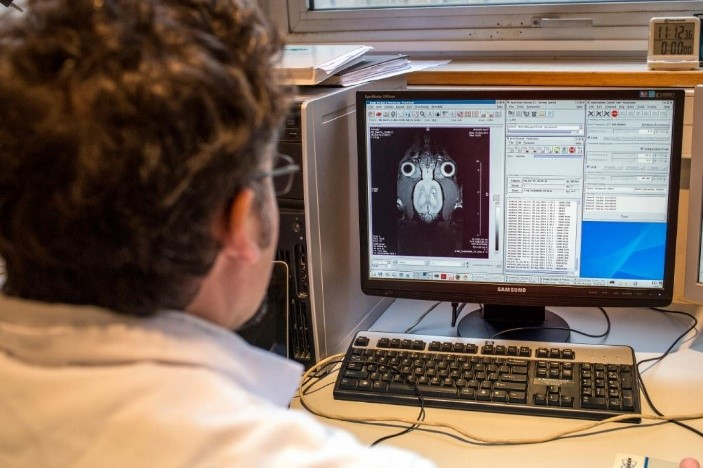 اتصال مغز انسان به کامپیوتر