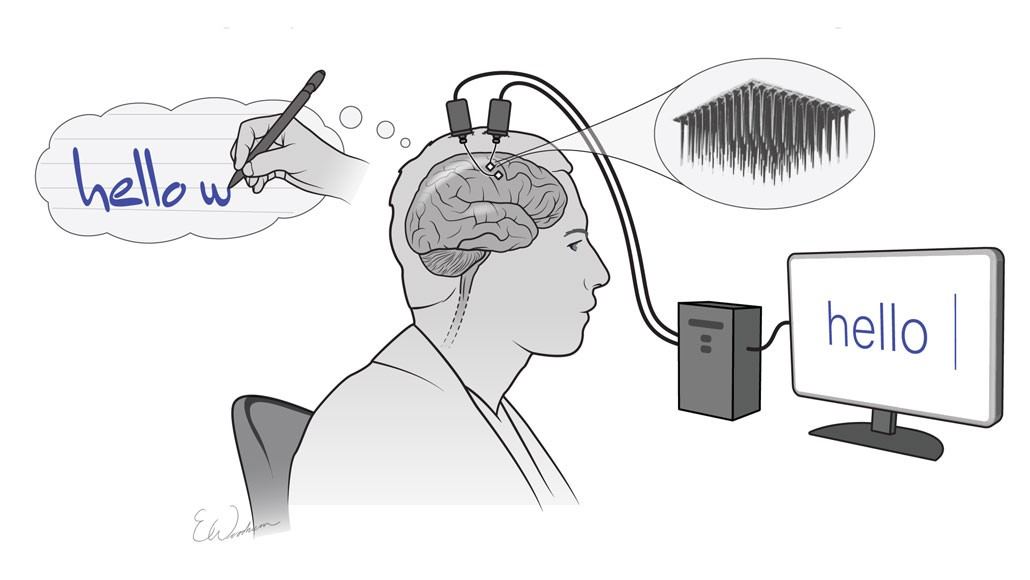 الکترودهای ذهنخوان